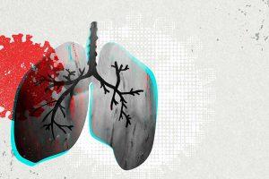 9 Lebensmittel für eine gesunde Lunge